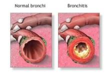 Photo of Az asztma kezelése illóolajokkal