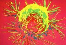 Photo of A daganatokat megszelídíteni, nem elpusztítani kell.