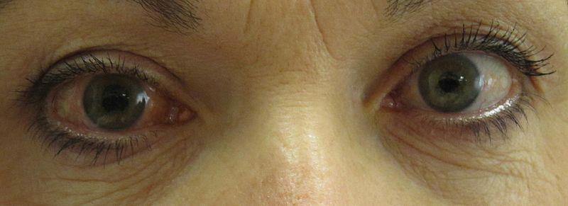 Glaucoma 1 1