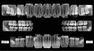 fmx Loveland Dentist Ross Family Dentistry Anne Ross