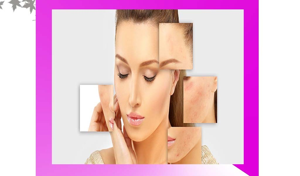 acne-scars-remover-treatment
