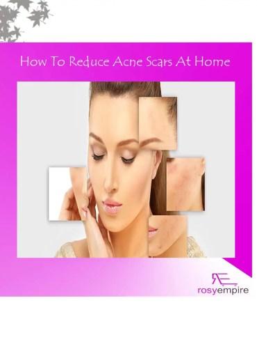acne-scars-remover-treatment