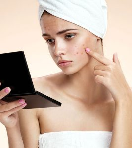 get-rid-of-pimples