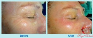 Mesotherapy_before_and_after_dubai
