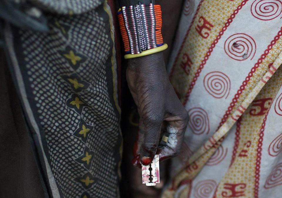 Mutilation génitale : les images d'une excision choquent-elles nos yeux plus que le corps de la femme?