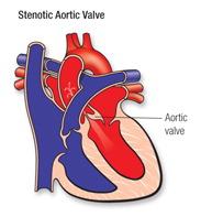 Stenoci aortic valve