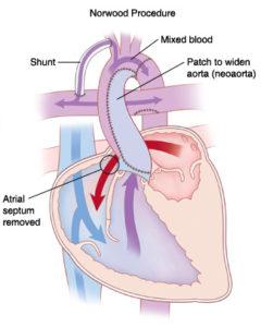 Die hoofdoel van die Norwood prosedure is om 'n hart te skep met 'n enkele funksionele ventrikel wat bloed aan beide die longe en liggaam kan voorsien. Met die Norwoord-prosedure word drie stappe gedoen om die regterventrikel in te span as die pompkamer wat die bloed na die longe en die liggaam moet voer. Om dit reg te kry word die (1) vernoude aorta verwyd deur dit aan die longslagaar wat uit die regterventrikel spruit, te koppel, Daar word (2) 'n gaatjie tussen die twee atria (vulkamers) gemaak sodat die bloed van die suurstof-arme bloed van die liggaam en suurstofryke bloed van die longe meng en dié gemengde bloed dan deur die regterventrikel na beide die longe en liggaam gepomp word. (3) Omdat die longslagaar nou as die aorta gebruik word, moet 'n nuwe verbinding (shunt) uit die aorta na die longslagare gemaak word. Hoewel die liggaam nooit 100% suurstofryke bloed ontvang nie, is dit darem ongeveer 50% suurstofryk om die liggaam aan die gang te hou. Indien die fetale verbinding tussen die aorta en longslagare oop was, word dit gesluit.