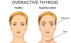 can-you-get-pregnant-if-you-have-overactive-thyroid-660x400