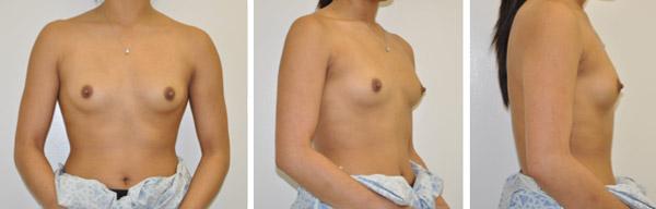 In al meer gevalle word tepelbehoudende chirurgie ingespan wanneer 'n knop verwyder word. Die resultate is medies en esteties goed.