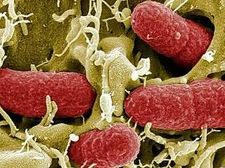 Ver vídeo 'La bacteria E.Coli, responsable de las muertes en Alemania'