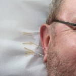 Why Acupuncture Is Good For Your Health