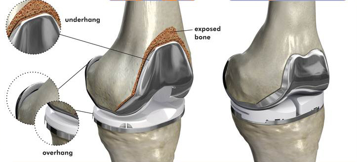 </p> <p>total knee replacement