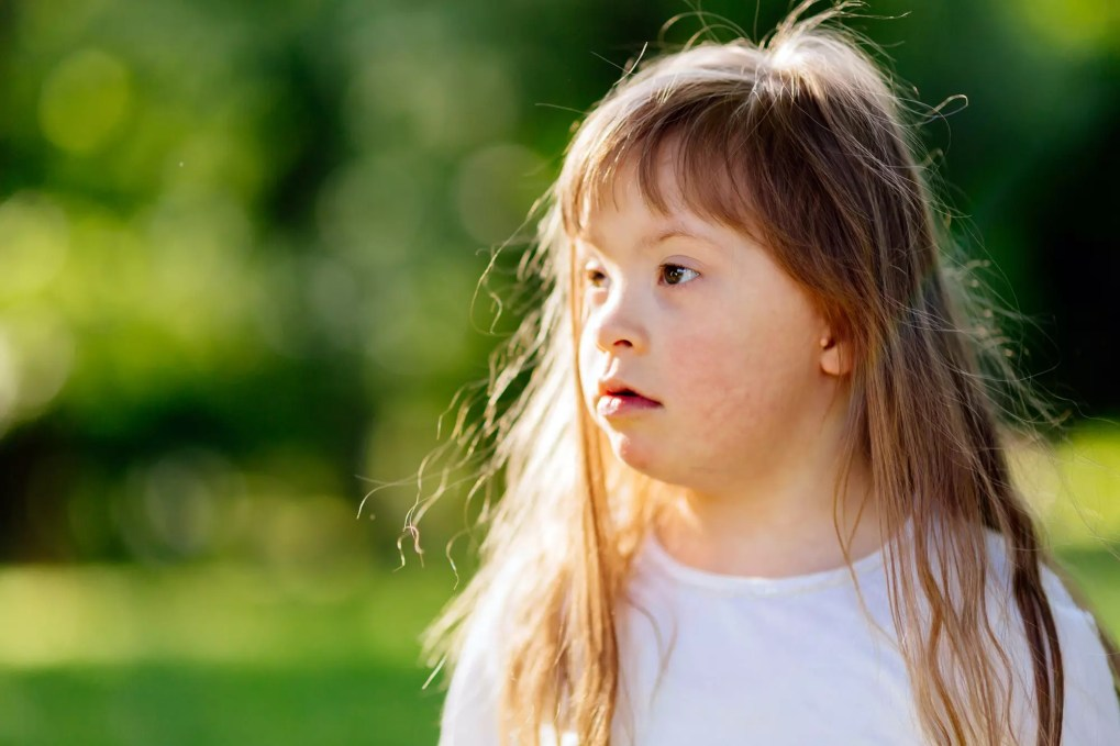 Down syndrome child in nature