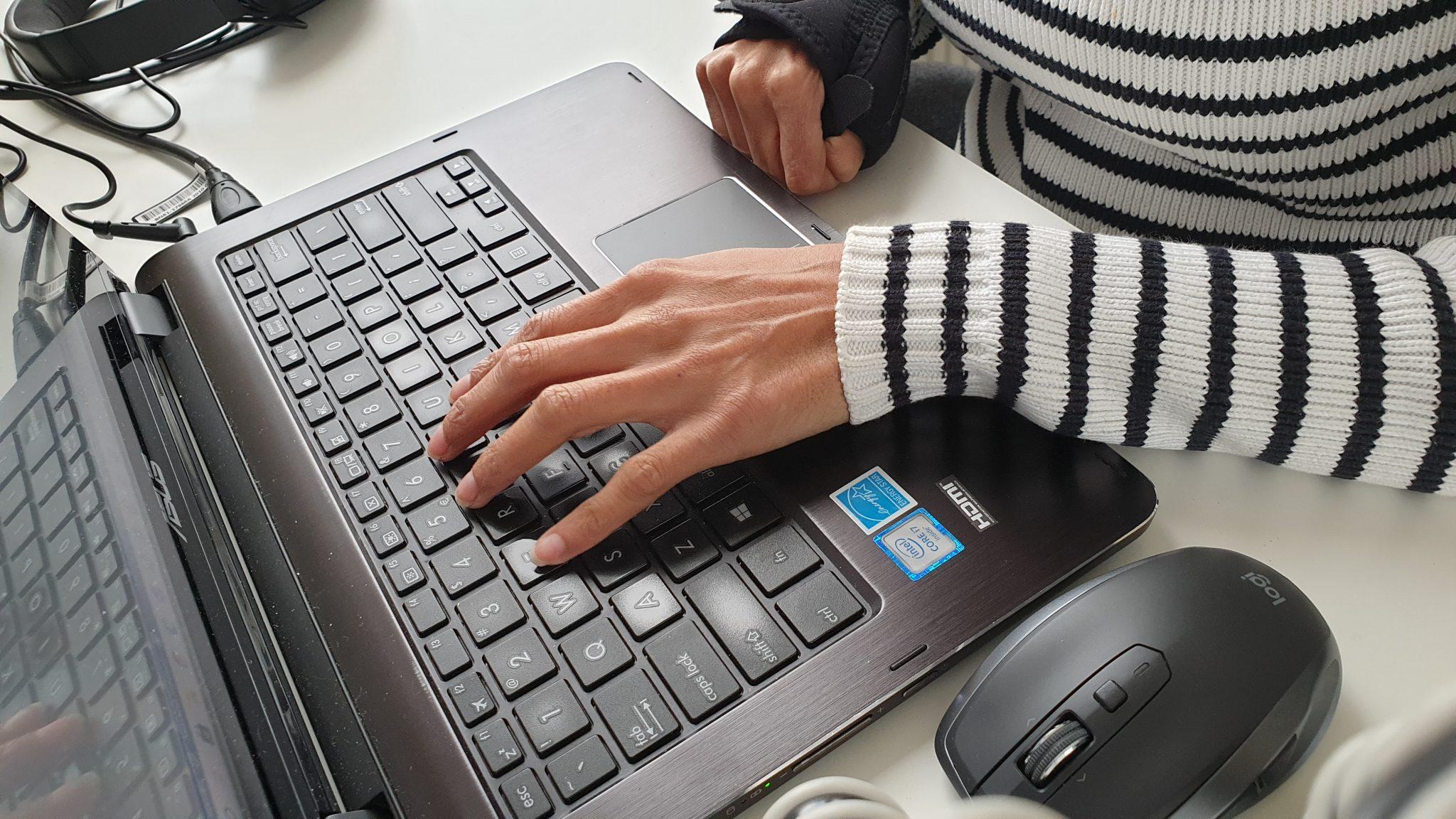 Typen met een hand vanwege CP en een arbeidsbeperking.