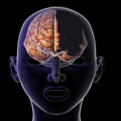 هل يمكن لإنسان أن يحيا بنصف دماغ ؟ 1