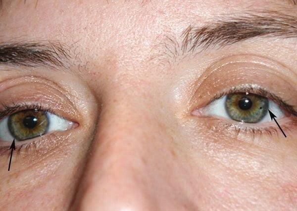 داء ويلسون Wilson disease : الأسباب - الأعراض - العلاج 3