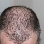 أشهر العلاجات الطبية و البديلة لحالات تساقط الشعر عند النساء 2