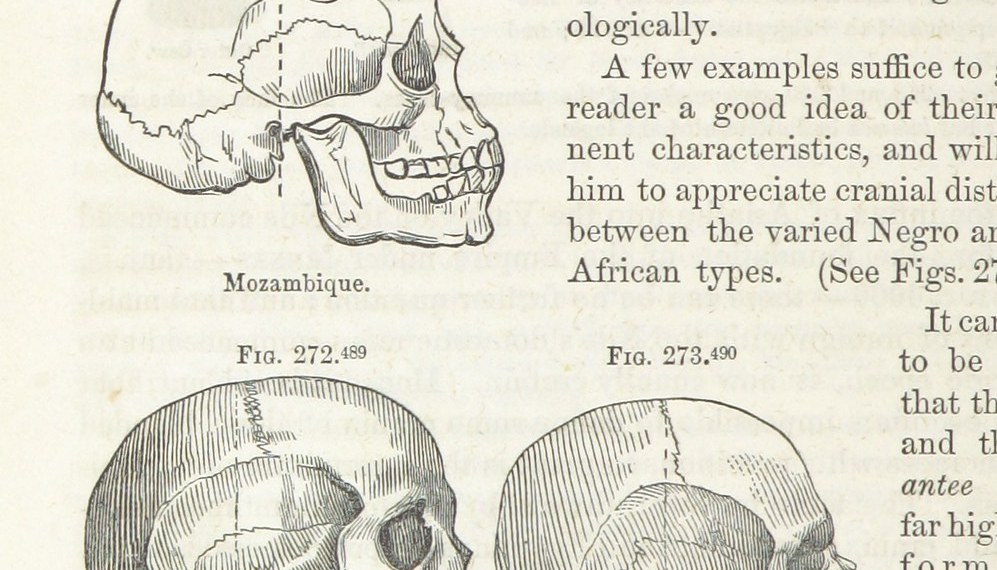 Samuel George Mortons Zeichnungen von Schädeln aus Afrika. Bild: British Library