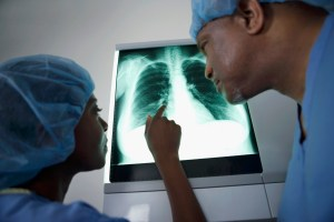 Two doctors and an x-ray  Long Beach Accident Attorney