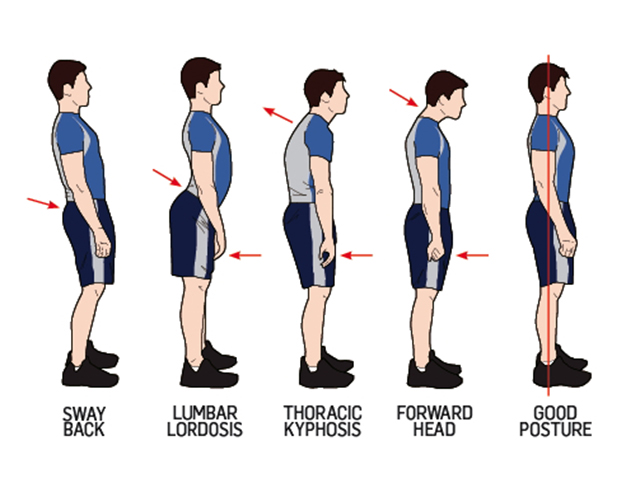 Posture2