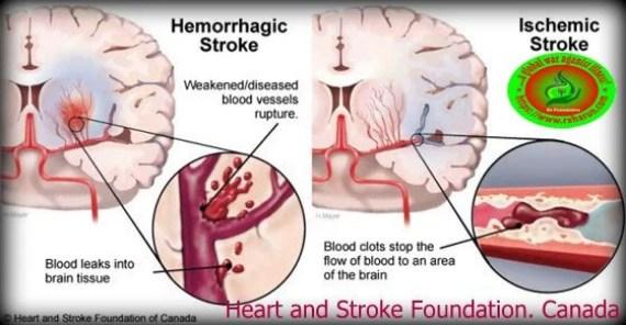 www.rxharun.com/stroke/anti-platelate