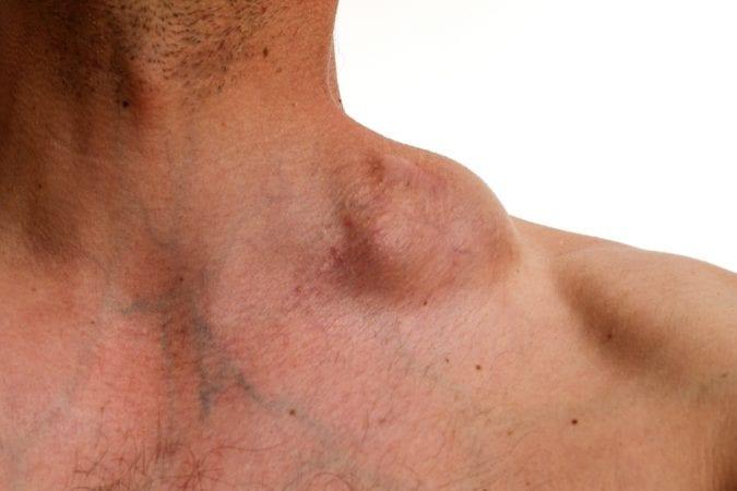 Hodgkin tumor on neck