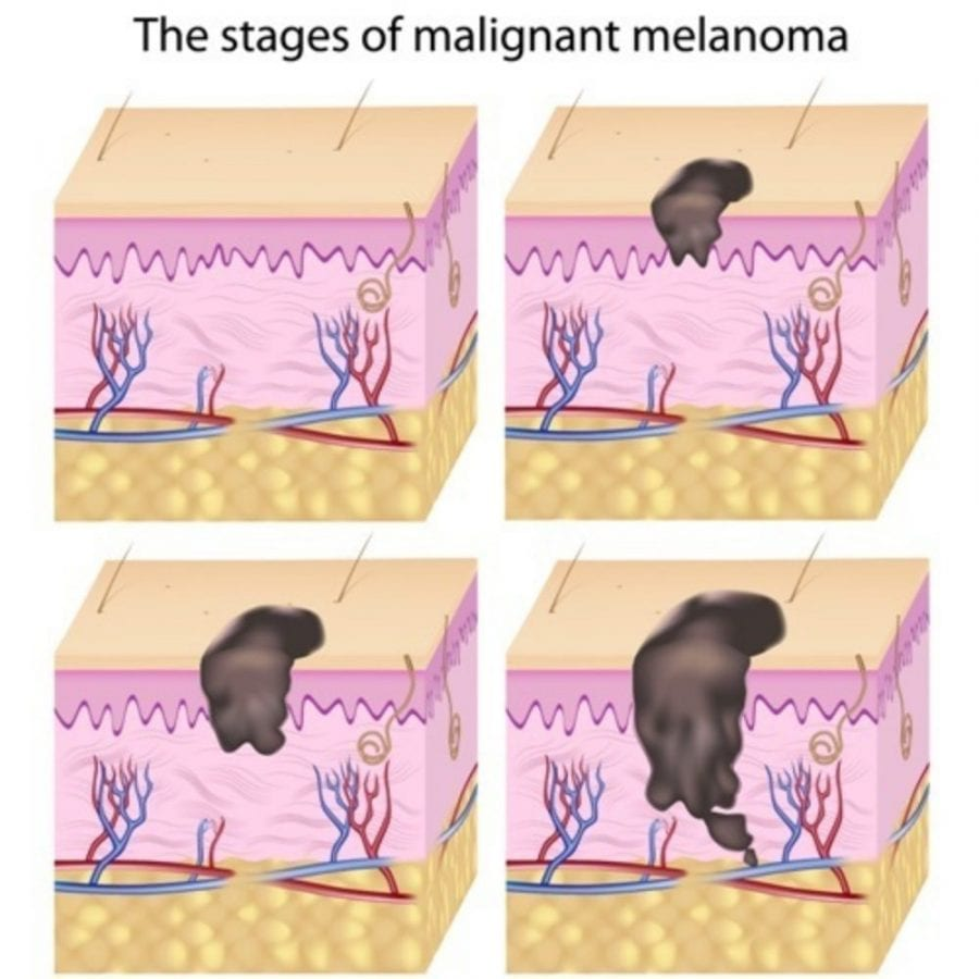cannabis, medical cannabis, cannabinoids, melanoma, cancer, skin cancer, cancer treatment, chemotherapy, radiation, metastasis, stages of melanoma
