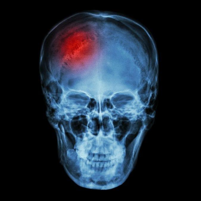 Xray showing head injury
