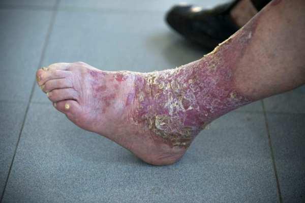 psoriasis, skin disorders, skin disease, CBD, THC, cannabinoids, cannabis, medical cannabis, healthy skin, skin treatment, pain