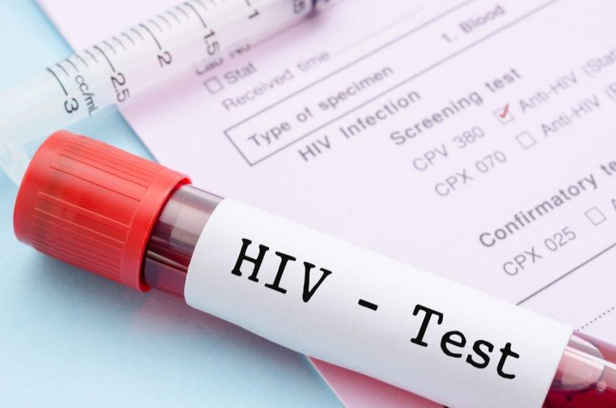 HIV Blood Test Vial