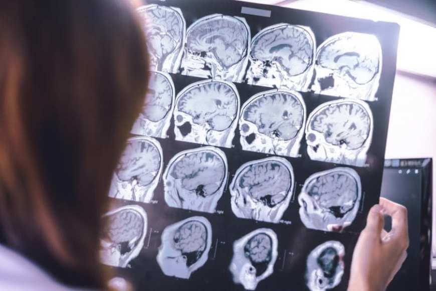 Alzheimer's brain scans, THC for Alzheimer's
