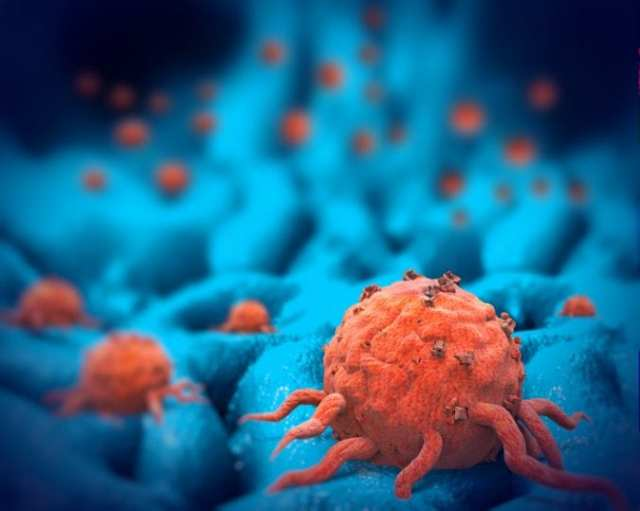 breast Cancer cells in 3-D Illustration