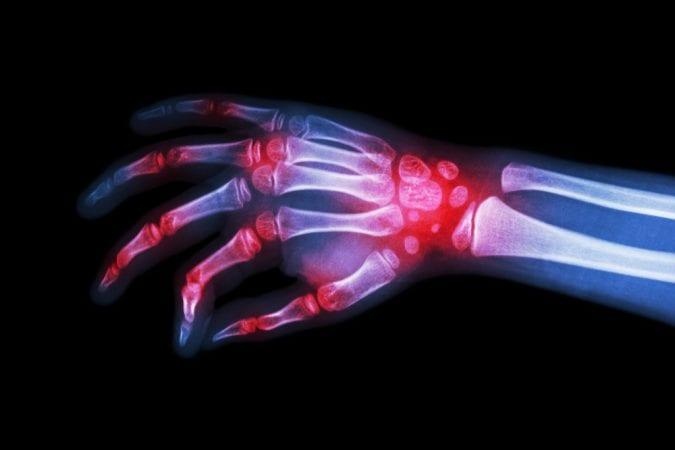 cannabis, CBD, THC, rheumatoid arthritis, CBD oil, chronic fatigue, teenagers, Tom Bethell, UK, medical cannabis