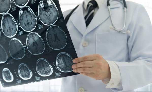 cannabis, stroke, brain damage, brain health, MRI, medical cannabis, CBD, THC, endocannabinoid system, endocannabinoids