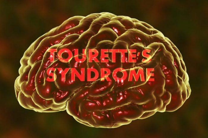 tourette's syndrome treatment, tourette syndrome, cannabis, CBD, THC, Australia, research, tics, neurological disorders, cannabinoids, medical cannabis