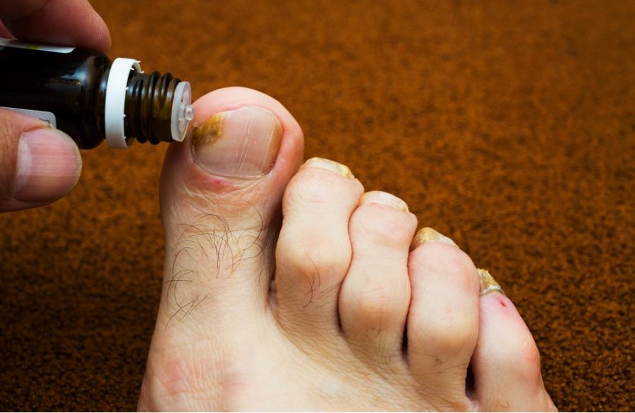 foot fungus, toe fungus CBD, CBD, cannabinoids, fungal infections, foot infections, health benefits, infection