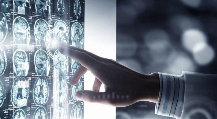 brain health, alcohol, alcohol and brain health, effects of alcohol, health risks, cannabis, cannabis brain health, cannabis research, alcohol research