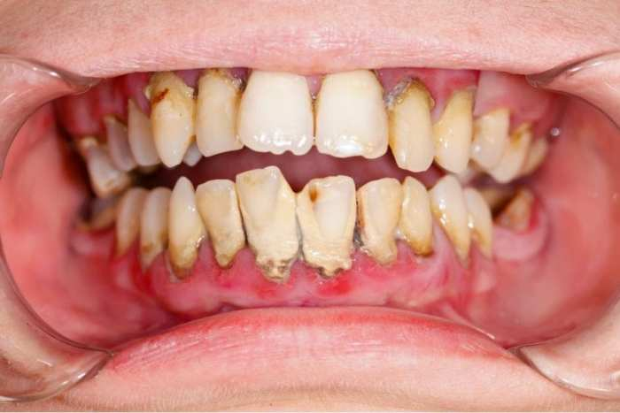 cannabis, medical cannabis, gingivitis, cannabis and teeth, oral health, oral hygiene, dental hygiene, dental care