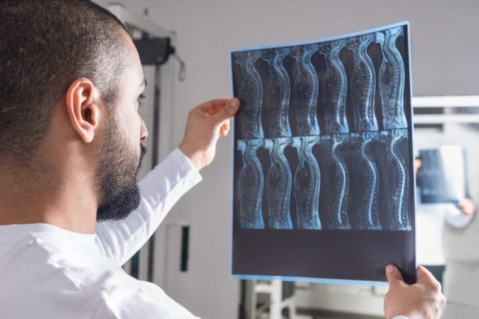 doctor looking at spinal cord injury