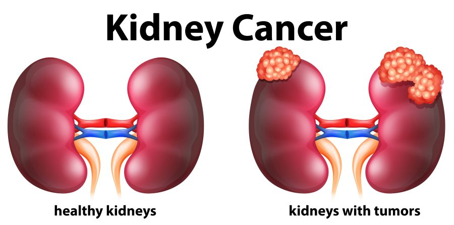 kidney canacer graphic