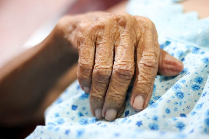 no chemo for this older adult in palliative care, who we jsut see the wrinkled hand of