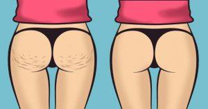 trattamento tecar cellulite