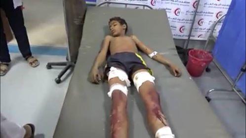 مقتل طفل واصابة شقيقة بانفجار مقذوف في الحديدة