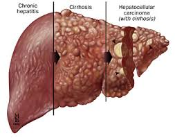 Different Stages of Hepatitis C image