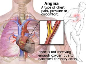 what is angina image