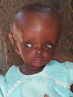 downward eyes in hydrocephalus babies image