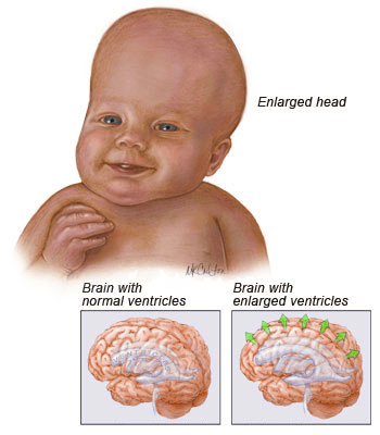 What causes Hyderocephalus image