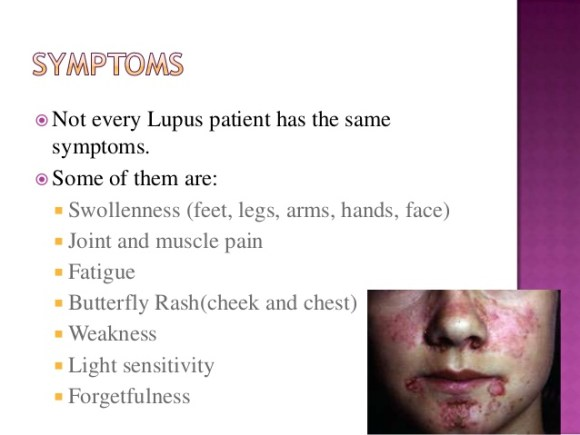 what is lupus butterfly rash