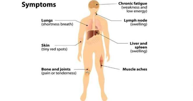 What is Lymphoma Symptoms and Homeopathic Treatment