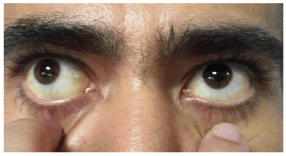 Dr Sabeel Anemia Causes Diagnosis and Homeopathic treatment cronic anemia